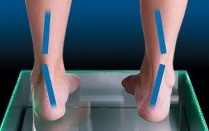 What-to-know-about-supination-of-the-foot-300x188 Подборка моделей для бегунов с гипопронацией
